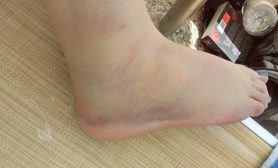 ankle-sprain-1-e1554990546961.jpg